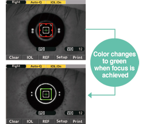 Newly designed IOL Mode [color focus indicator]